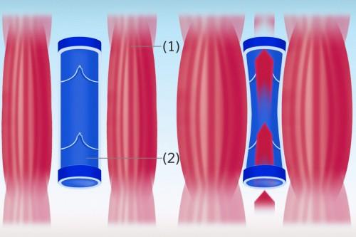 Die Funktion der Muskelpumpe - Muskel (1), Vene (2)