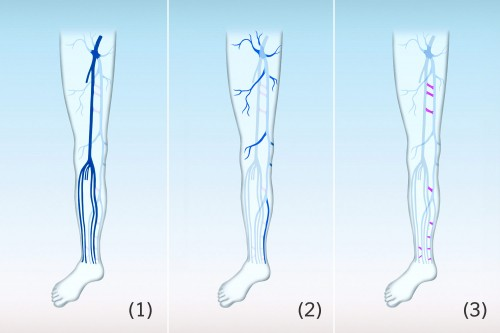 Deep venous system (1), superficial venous system (2), connecting veins (3)