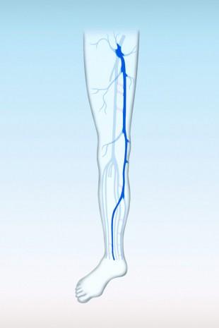 Die große Stammvene im Bein