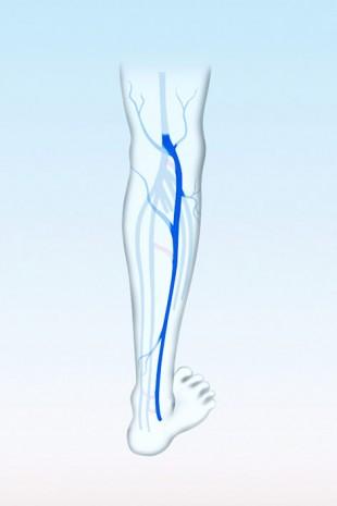Die keine Stammvene im Bein