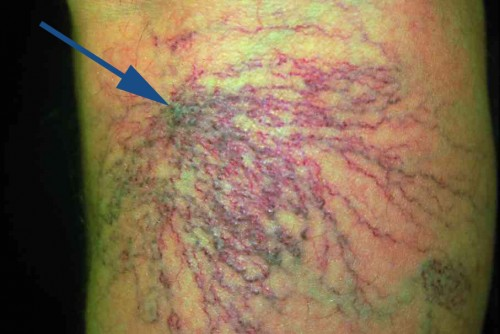 Spider veins in the area of a perforating varicose vein, the arrow indicates the perforating vein