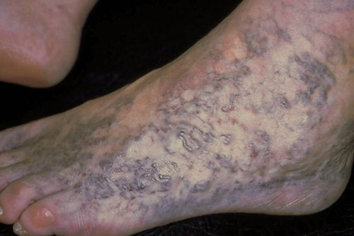 Corona phlebectatica - a particularly severe form of spider veins on the foot