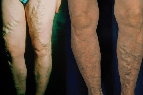 Side branch varicose veins