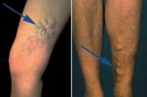 Krampfadern der Perforansvenen am inneren Oberschenkel/oberhalb des inneren Knöchels mit Blow-out Bildungen