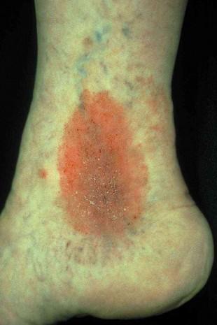 Ekzem: Meist juckende Hauterkrankung, die sich in einer entzündlichen Hautreaktion äußert.