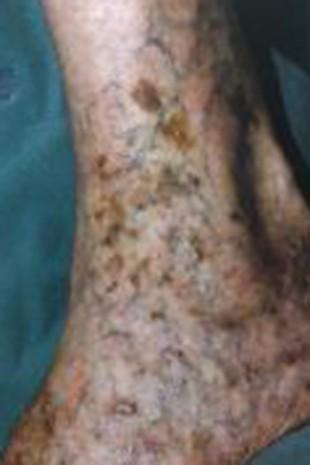 Braunverfärbung der Haut