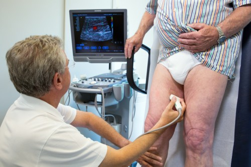 Duplex ultrasound examination provides important information on the vein function