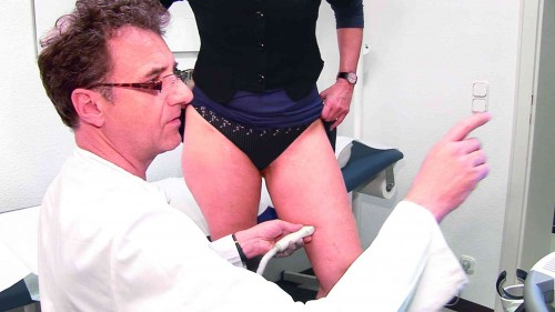 Ultrasound examination of spider veins and varicose veins