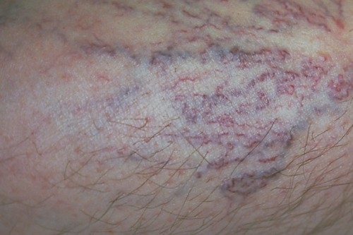 The bluish or reddish-purple spider veins can be seen shining clearly through the skin