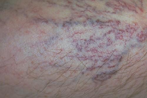 Besenreiser: Vor allem an den Unterschenkeln sowie an den seitlichen Oberschenkeln schimmern die erweiterten Venen bläulich oder rötlich bis violett und deutlich sichtbar durch die Haut.