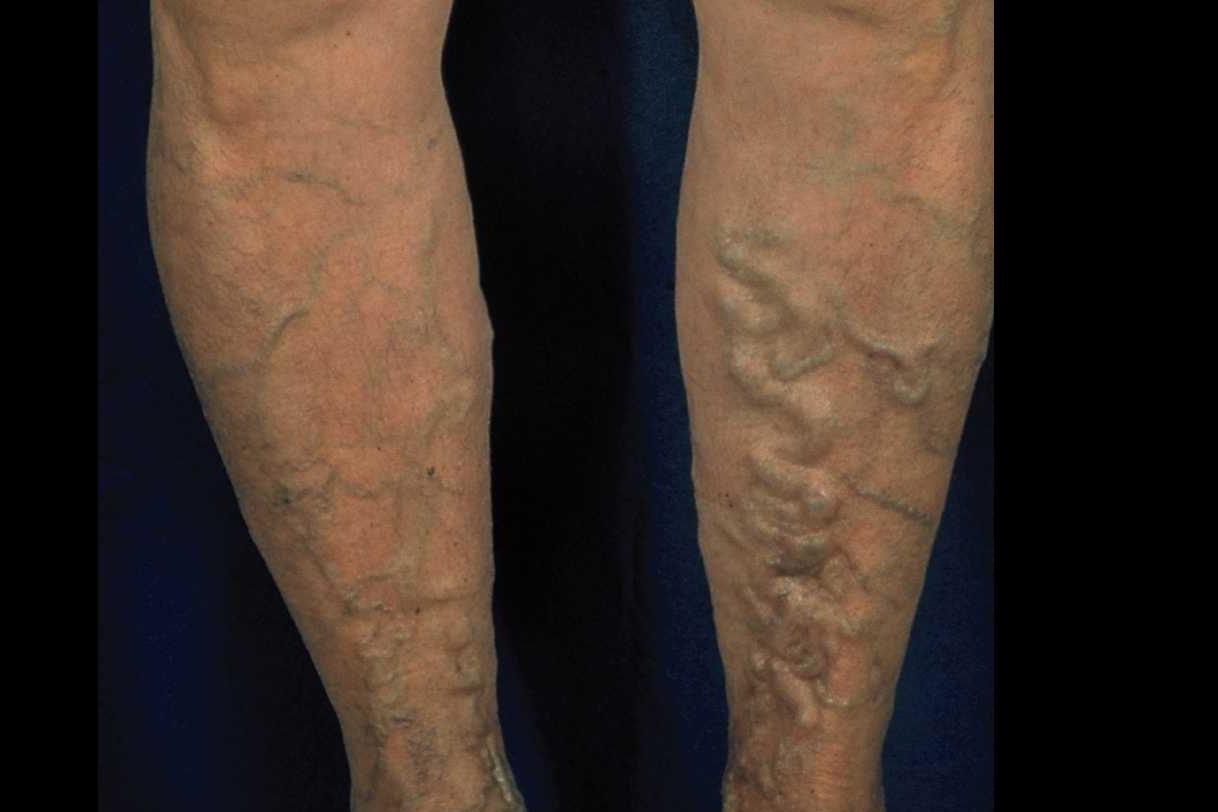 wassereinlagerung im linken knöchel