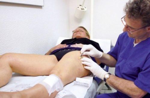 Durchführung der Mikro-Sklerotherapie zur Behandlung von Besenreisern
