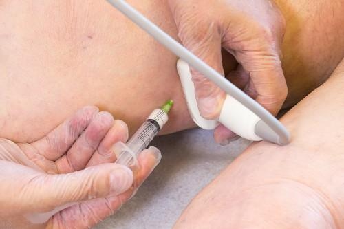 Durchführung der ultraschallkontrollierten Schaum-Sklerotherapie mit einer einfachen Nadel