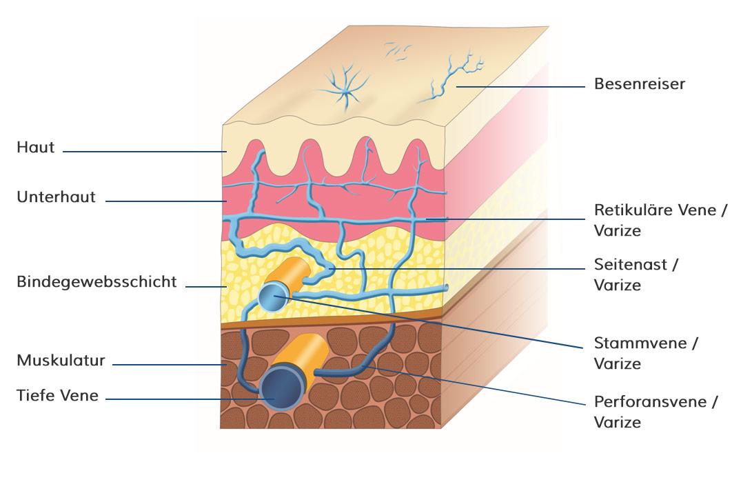 Übersicht über die Lage der Krampfaderformen