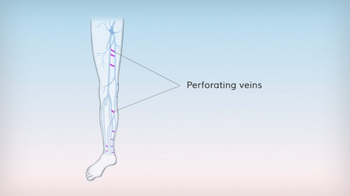 Perforating veins connect the superficial and the deep veins in the leg at various sites