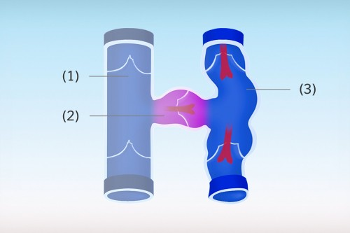 Als Venenklappeninsuffizienz bezeichnat man eine Funktionsschwäche oder einen Funktionsverlust der Venenklappen.