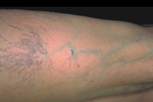 Reticular varicose veins with a diameter of 1-3 mm are slightly larger than spider veins